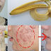 Rubs a Banana Peel on Your Face and See what will  Happens to Your Acne!