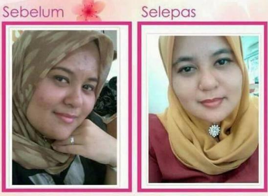 nurraysa beauty skincare promosi