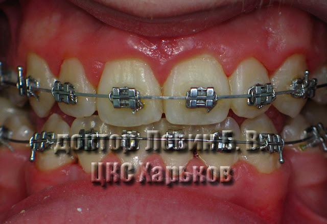 зубы после чистки зубов стоматологом