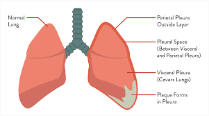 What is The Meaning of Mesothelioma?