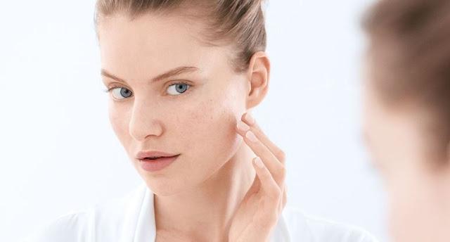 8 maneiras que sua pele transpira seu esforço diário!! veja maneiras de como acalma-la