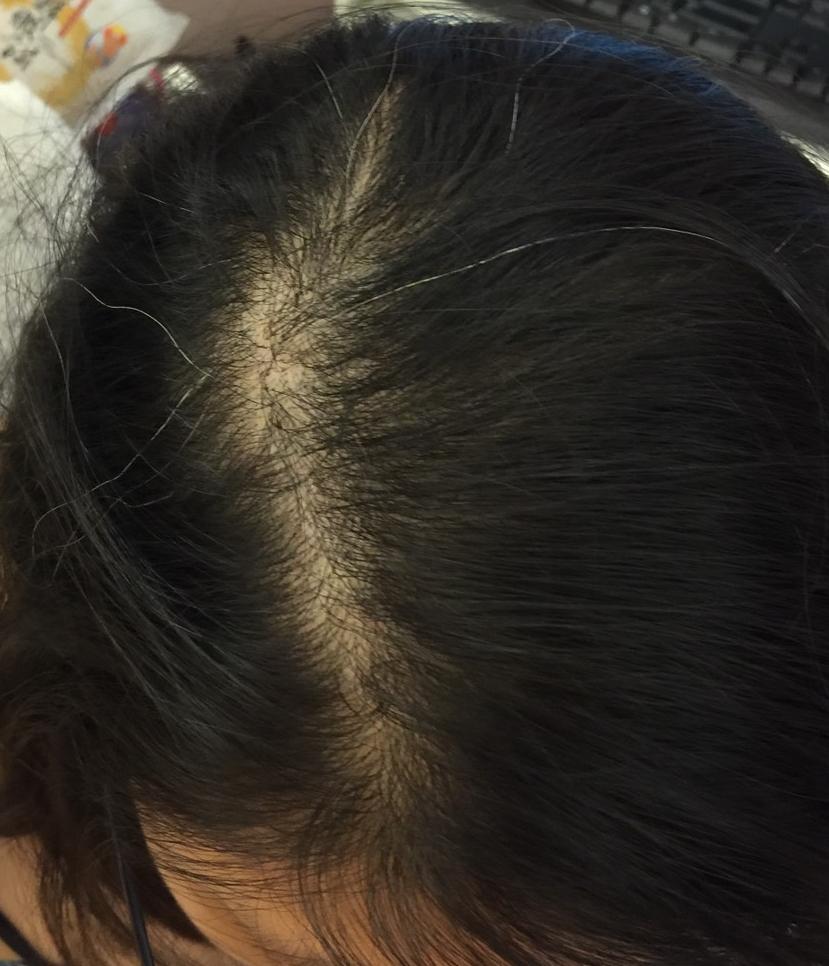 漏 皮膚 炎 頭皮 脂 画像 性
