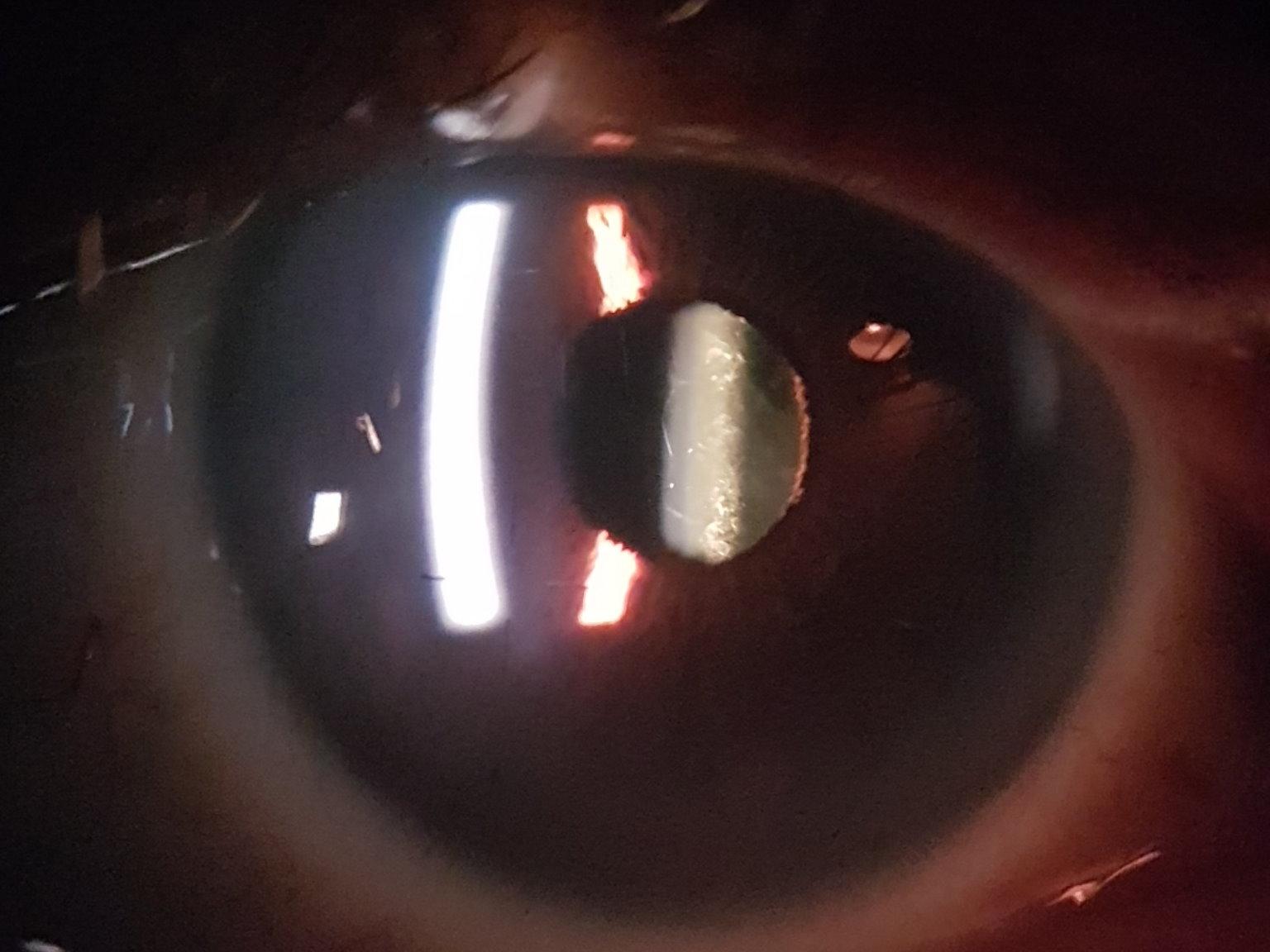 回復 手術 視力
