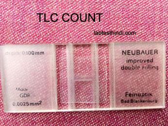 TLC( total leukocyte count) Test कैसे करते है ~ Lab Test Hindi
