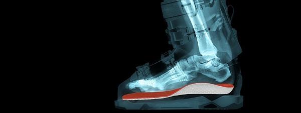 Un scaner vient prendre la forme exacte de votre pied