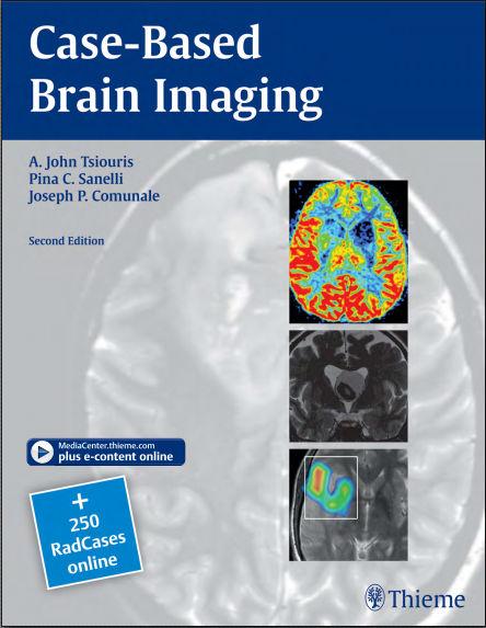 Case-Based Brain Imaging, 2nd Edition PDF (Feb 19, 2013)