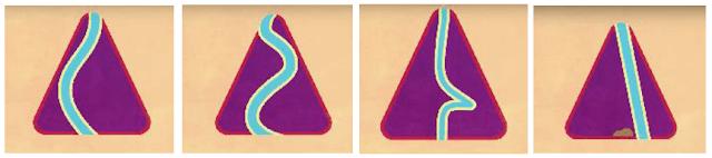 أشكال-انحراف-الحاجز-الأنفي