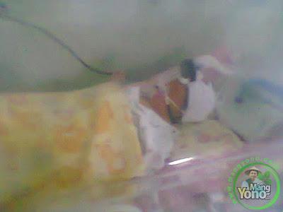 Baby Gigin saat diruangan NICCU Rs. Efarina Etaham ( Sekarang SILOAM)