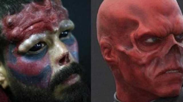 Ngeri! Agar Mirip Red Skull di Komik Marvel Pria Ini Nekat Potong Hidungnya