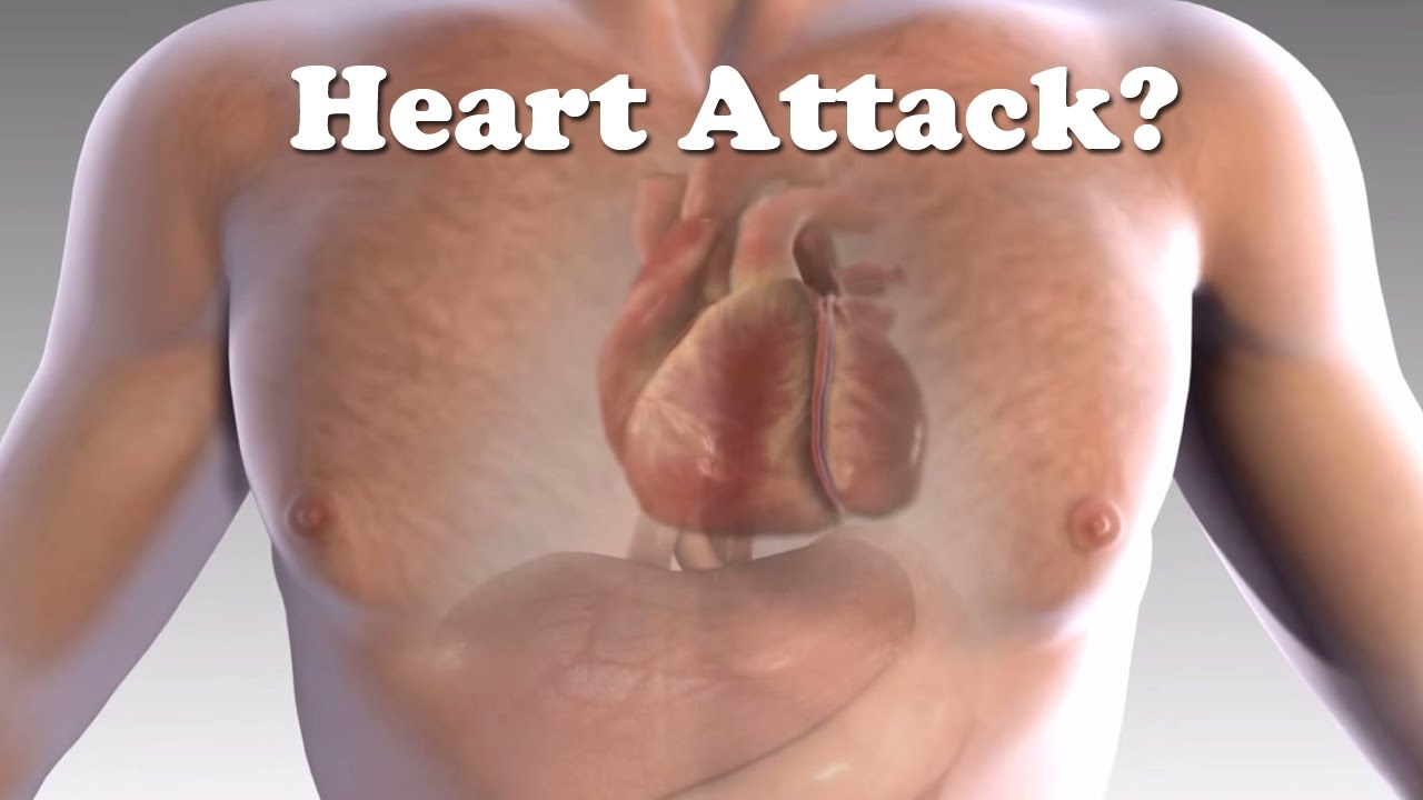 Heart Attack, Your Body Warns You With These 5 Signs!