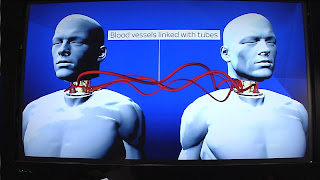 First Successful Head Transplant Carried Out In China