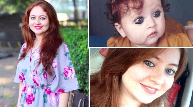 Ένα κορίτσι που γεννήθηκε από συνηθισμένους Ινδούς αντιμετωπίζει προβλήματα γιατί έχει κόκκινα μαλλιά και γαλανά μάτια