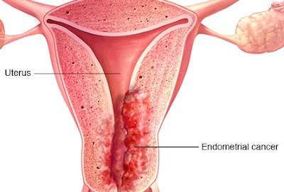 how to protect yourself from uterine cancer
