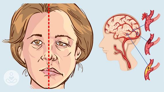 Cara Mandi Yang Benar Akan Menghindari Stroke