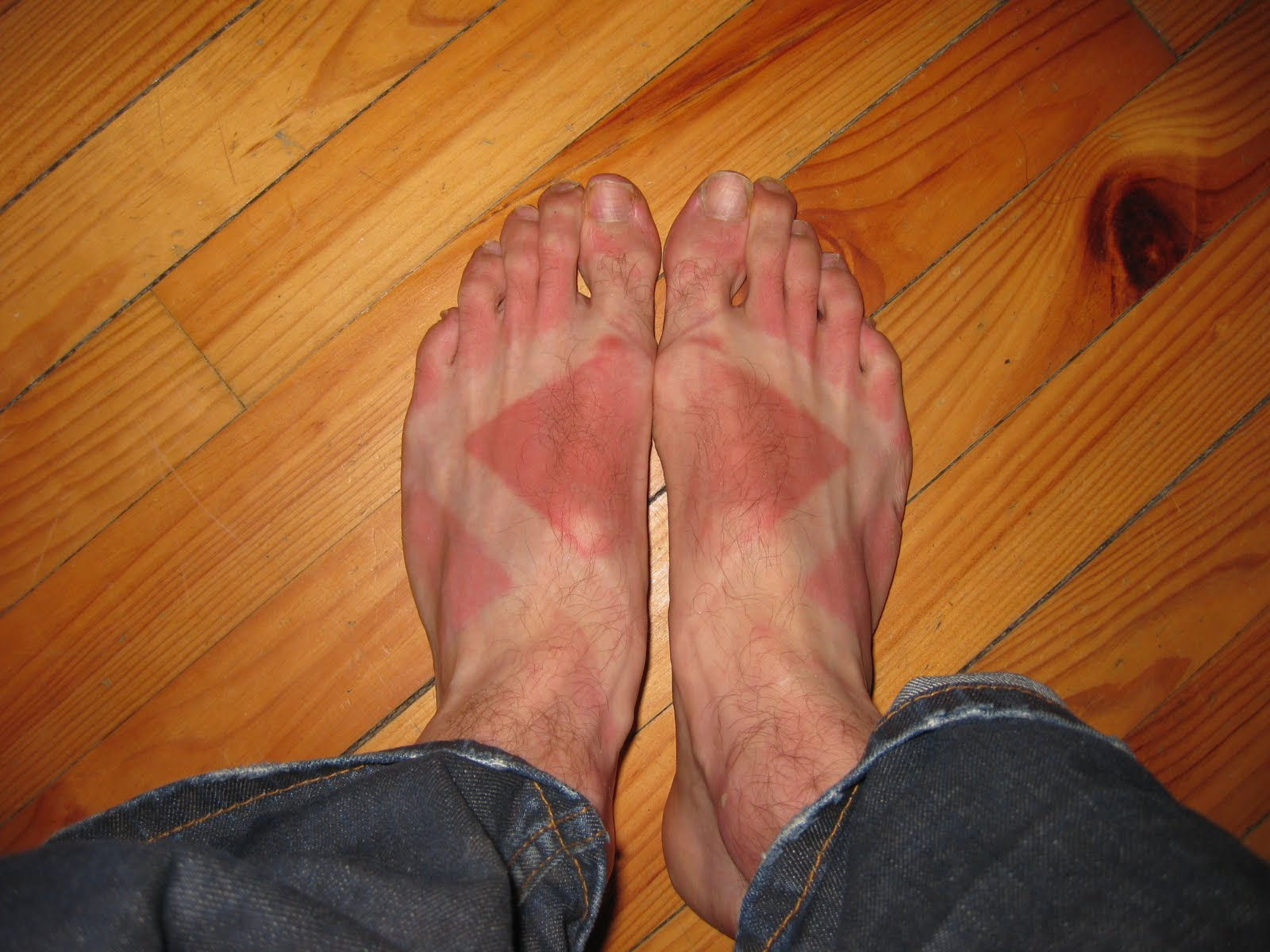 Ouch! Get some aloe on those sunburned feet!