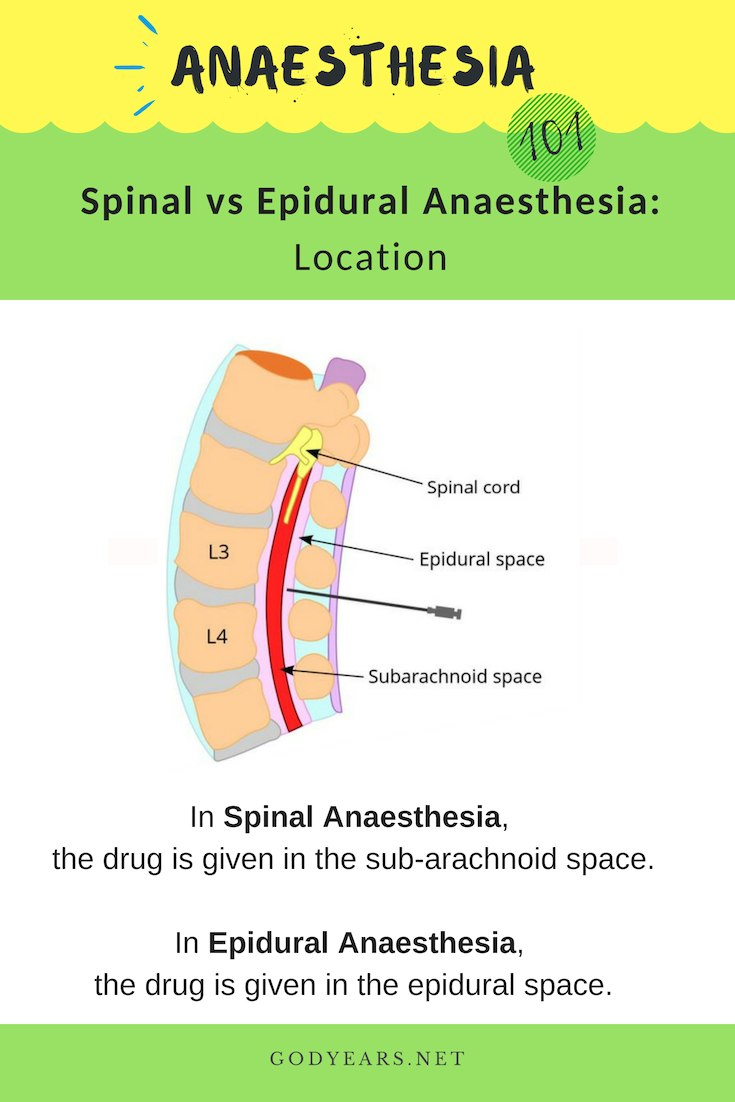 Understand the differences between the two types of anaesthesia - spinal vs epidural