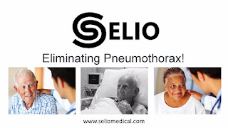 Selio Medical's Innovative Device Eliminate Collapsed Lungs During Biopsy