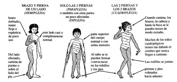 PARALISIS CEREBRAL ESPASTICA PDF
