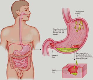 Penyakit maag kronis
