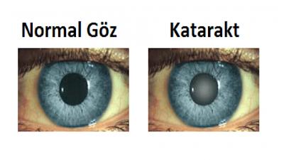 katarakt nedir,katarakt olmamak için ne yapmalı,katarakt ameliyatı,katarakt nasıl teşhis edilir