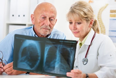 A Possible New Early Mesothelioma Detection Method