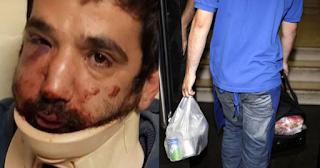 Θεσσαλονίκη: Ντελιβεράς ξυλοκοπήθηκε άγρια από τον εργοδότη του με σιδερογροθιά