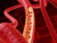 kan dolaşımı bozukluğunun belirtileri