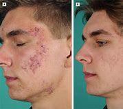 tratamiento anti acne definitivo con luz pulsada