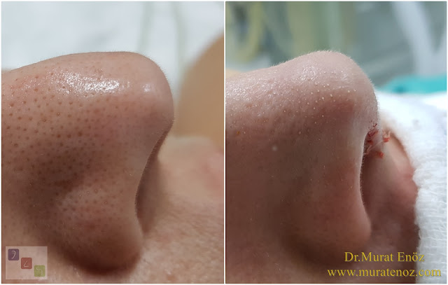 Nose tip plasty with nasal hump reduction operation in İstanbul - Nose tip lifting in İstanbul - Tip plasty in İstanbul - Nose tip reshaping in İstanbul - Nose tip surgery in Turkey - Open technique tip plasty operation in İstanbul