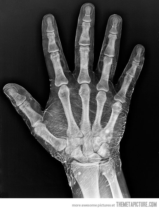 radiograph of a hand dipped in iodine