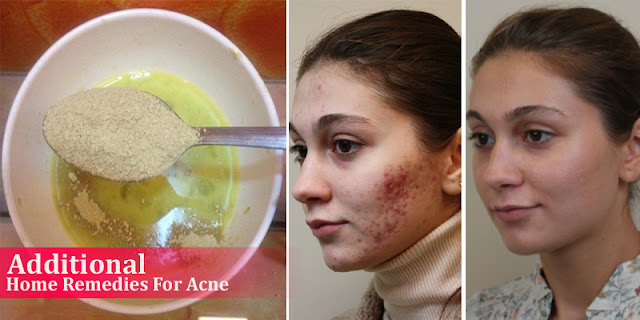 Additional Home Remedies For Acne - How To Remove Acne Naturally