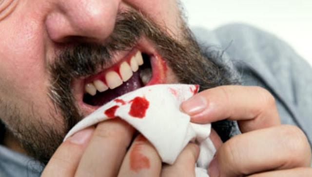 Enam Perkara Berikut Dapat Jadi Penyebab Gusi Kamu Berdarah