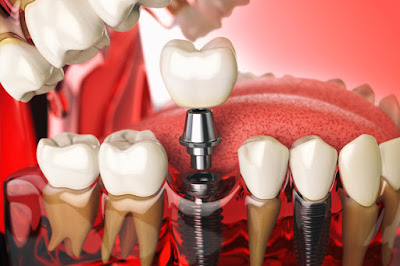 Tem Na Web - Tire as suas dúvidas sobre o implante dentário
