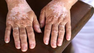 Penyebab dan Gejala Penyakit Vitiligo