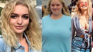 18χρονη θύμα bullying έχασε 63 κιλά για να μπορέσει να φορέσει το επίσημο σχολικό της φόρεμα