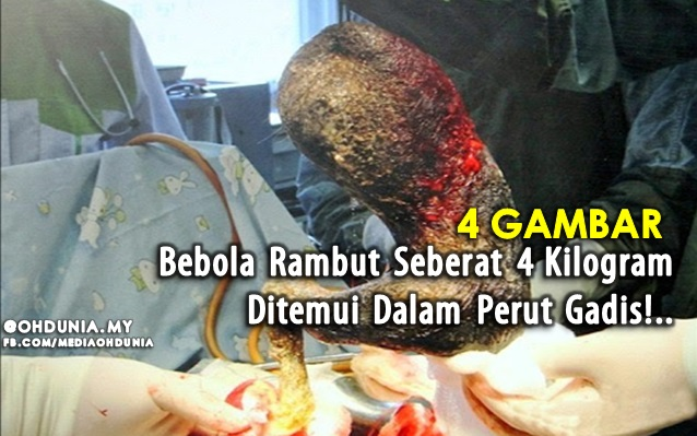 Bebola Rambut Seberat 4 Kilogram Ditemui Dalam Perut Gadis!..