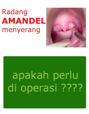 Apakah Amandel Harus Dioperasi?