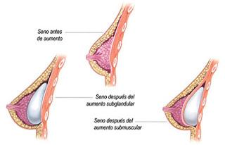 Aumento de senos con implantes mentor subglandular submuscular guadalajara mexico