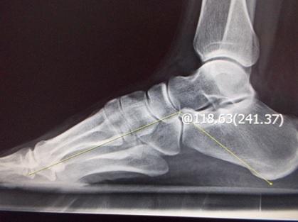 李文吉醫師 骨科專欄: 你的腳痛真的是足底筋膜炎嗎?
