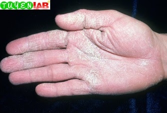 Fig. 2.37 Chronic hand dermatitis from cement (scale).