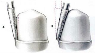 cách mài cùi răng sứ cho từng trường hợp
