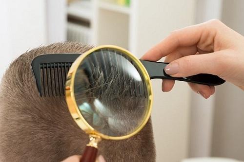 Cara mengatasi Kutu Rambut Secara Alami