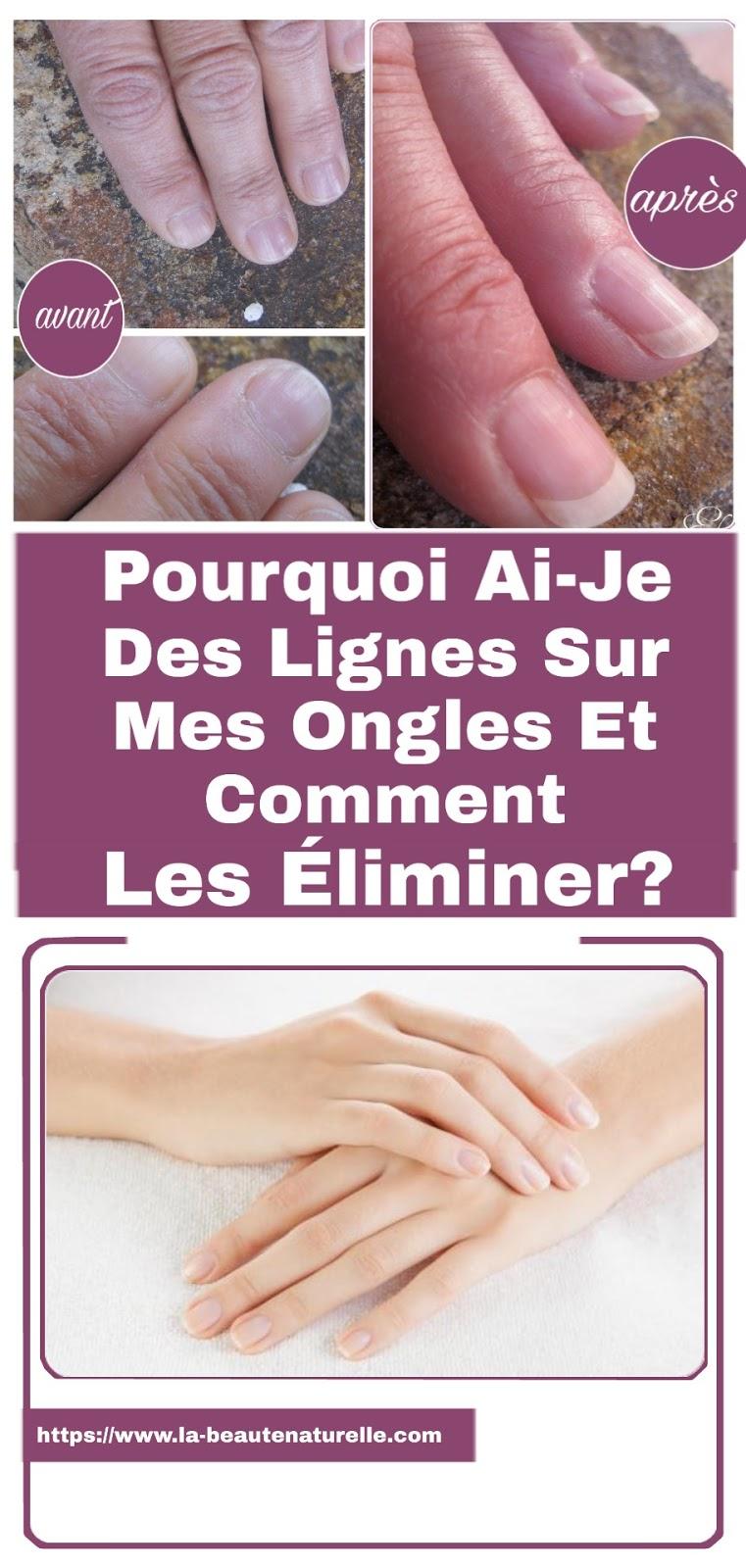 Pourquoi Ai-Je Des Lignes Sur Mes Ongles Et Comment Les Éliminer?
