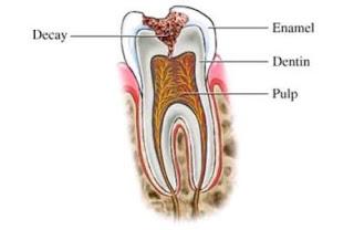 Penyakit Gigi Umum dan Khusus Wajib Kenal