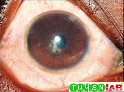 An early fungal ulcer presenting with very mild congestion and few symptoms. In fungal keratitis the signs are disproportionately higher than the symptoms