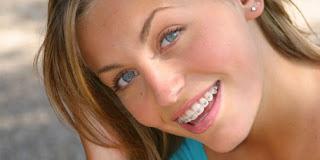Những bước niềng răng trong quy trình đạt chuẩn
