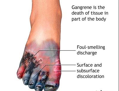 Pilihan Perawatan dan Pengobatan Gangren di Rumah Sakit