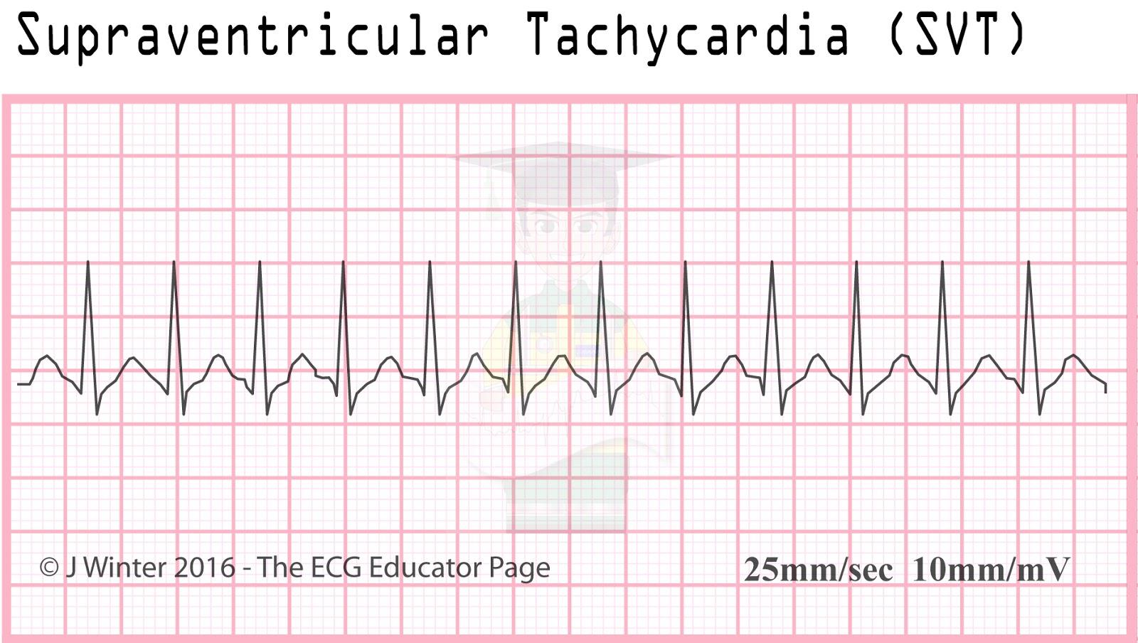 ecg rhythm strip for atrial fibrillation