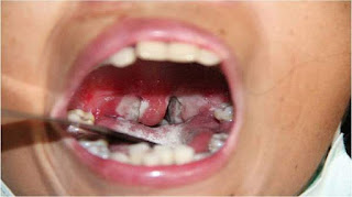 Punca Punca, Gejala, Pencegahan Dan Langkah Rawatan Infeksi Difteria