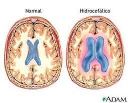 Marcha de hidrocefalia a presión